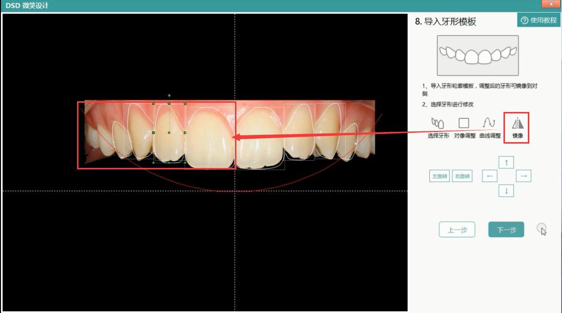 调整后的牙形可镜像到对侧,确认方案可行之后点击下一步