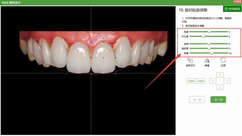 牙形模板的数码贴面进行大小调整