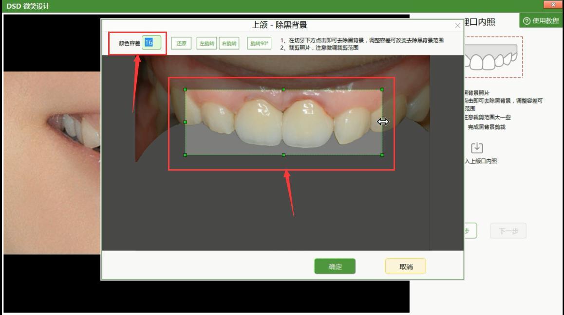 牙切端下方点击鼠标左键即可去除背景