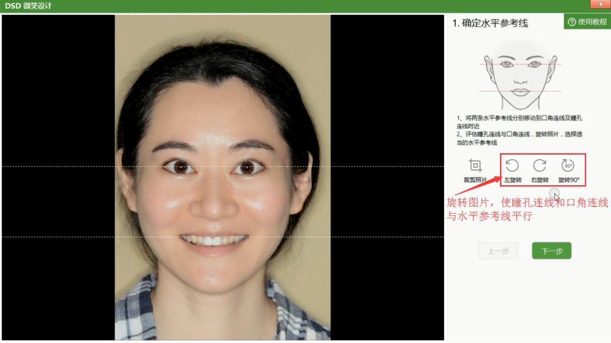 评估瞳孔连线与口角连线