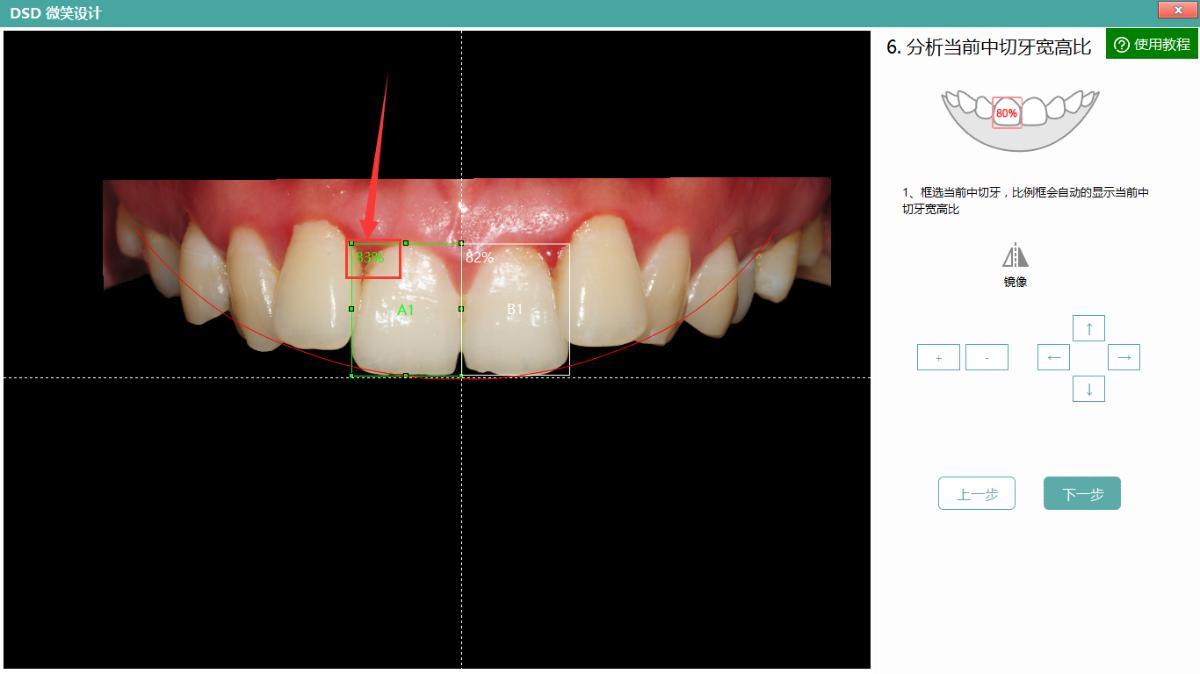 分析当前中切牙的宽高比