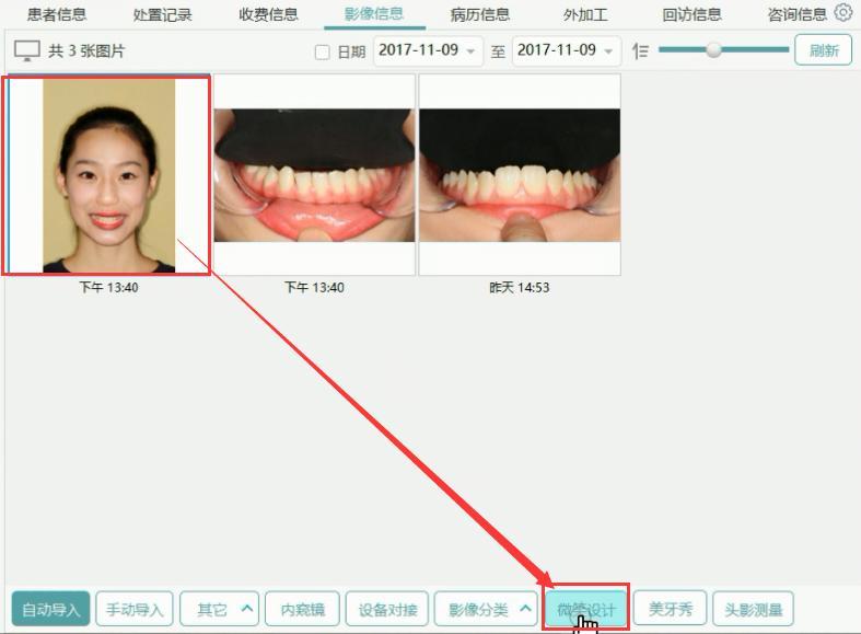 口腔管理软件上下颌DSD设计操作视频