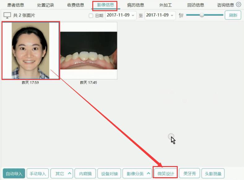 口腔管理软件上颌DSD设计操作说明